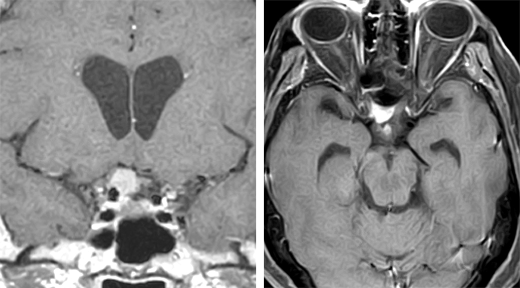 Figure 3: A group 3 or right-sided optic foramen meningioma is demonstrated. The strategic location of this mass leads to its early discovery due to the associated relatively rapid course of visual deterioration.
