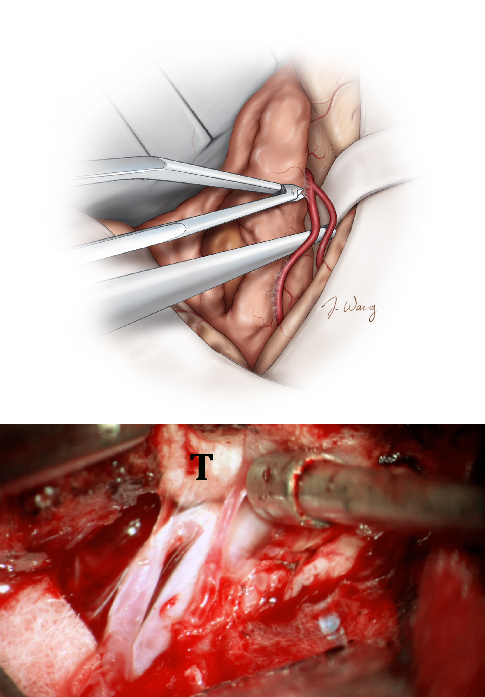 Figure 11: All MCA vessels are sharply dissected off of the tumor capsule and protected with the use of cottonoids once mobilized (upper image). Blunt dissection should be avoided when possible.  Most importantly, the feeding arteries of the tumor and the vital  en passage  vessels are clearly identified before their fate is decided.  Pieces of papaverine-soaked Gelfoam are used to periodically bathe small  en passage  vessels for relief of their vasospasm. Higher magnification intraoperative view demonstrates dissection of the M2 branches away from the tumor (T)(lower image).