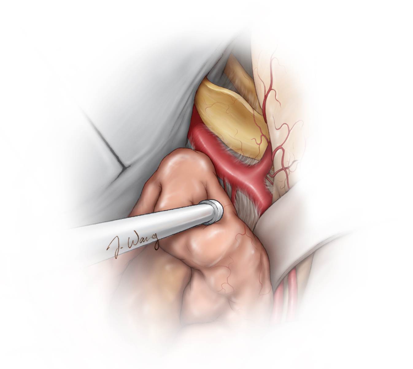 Figure 13: Gentle mobilization of the medial capsule and sharp dissection will uncover the optic nerve and proximal ICA. The falciform ligament is incised to untether the optic nerve. The posterior communicating artery can be seen originating from the posterior wall of ICA. This artery is an indicator for the general location of the oculomotor nerve. It the tumor is very adherent to the nerves or vessels, aggressive manipulation and blunt dissection must be avoided and a sheet of tumor left behind. Despite gentle handling of the tumor around the oculomotor nerve and tentorium, most patients will suffer from transient third and fourth nerve palsies after surgery. Coagulation of the tentorium around these nerves should be minimized as much as feasible.