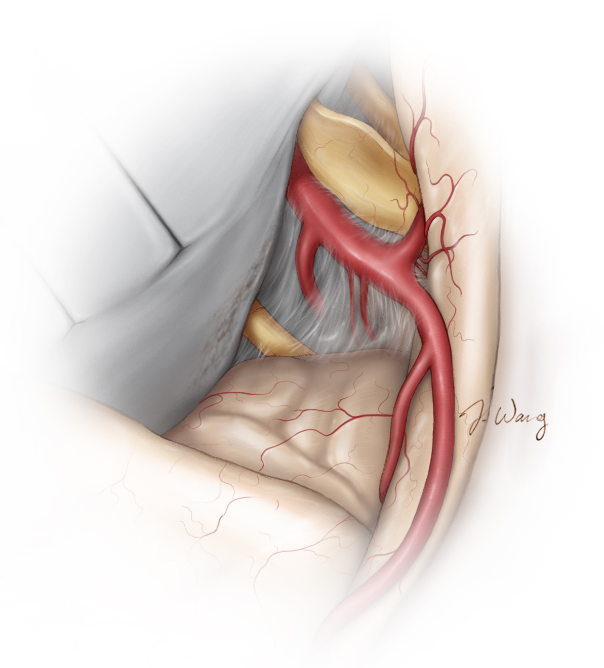 Figure 15:  It is essential to maintain the arachnoid planes along the entire circumference of the tumor capsule. To prevent infarcts, I preserve every perforating artery and minimize its manipulation.  After gross total tumor resection, the infiltrated dura along the medial sphenoid wing is cauterized. The neurovascular anatomy at the end of resection is demonstrated.