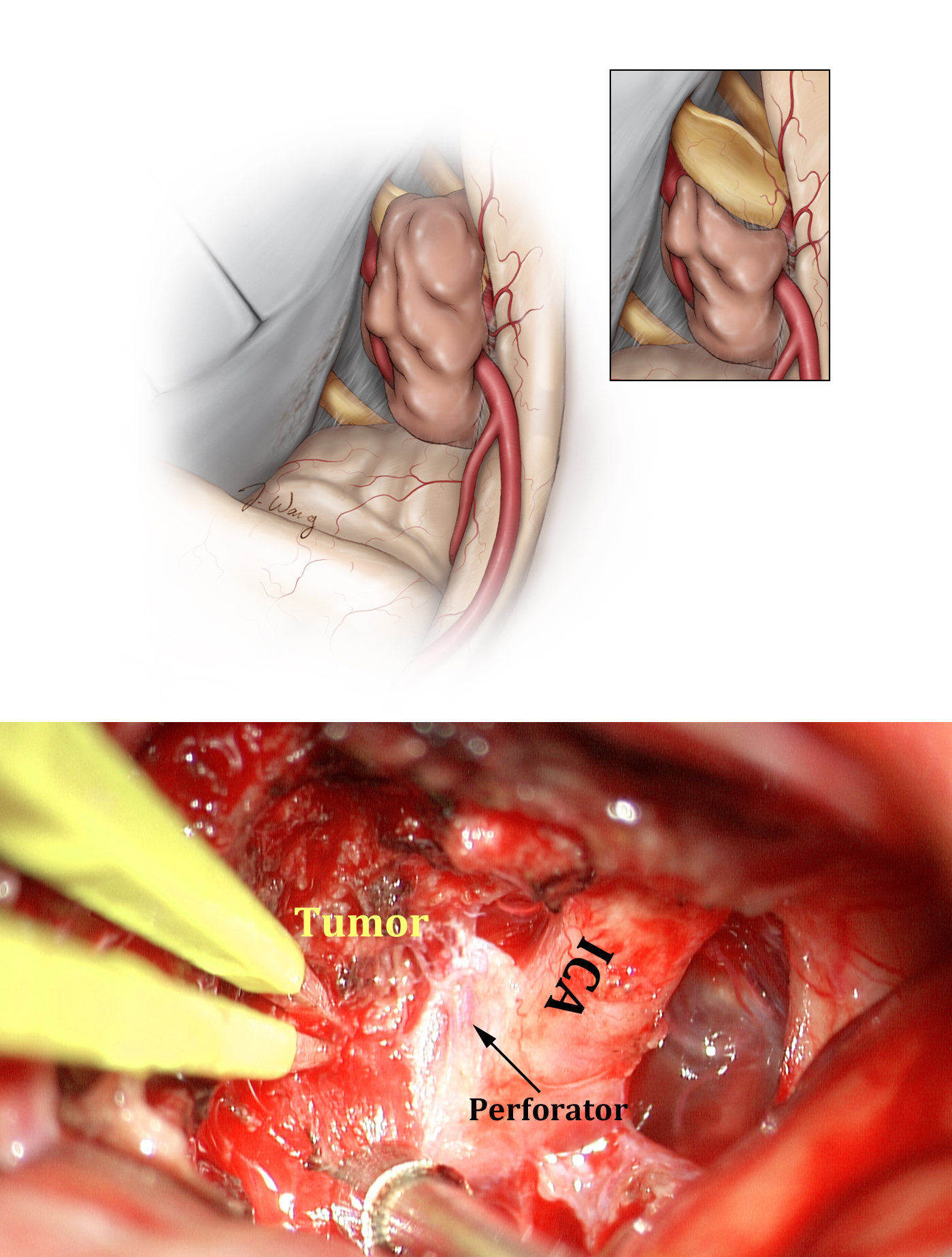 Figure 16: The optic nerve is decompressed, but the adherent firm/calcified tumor encasing the vasculature is left behind to avoid injury to the perforating arteries (upper image). The lower intraoperative photo demonstrates the anterior choroidal artery or one of the perforators (arrow) encased by the tumor. This piece of the tumor was not manipulated.