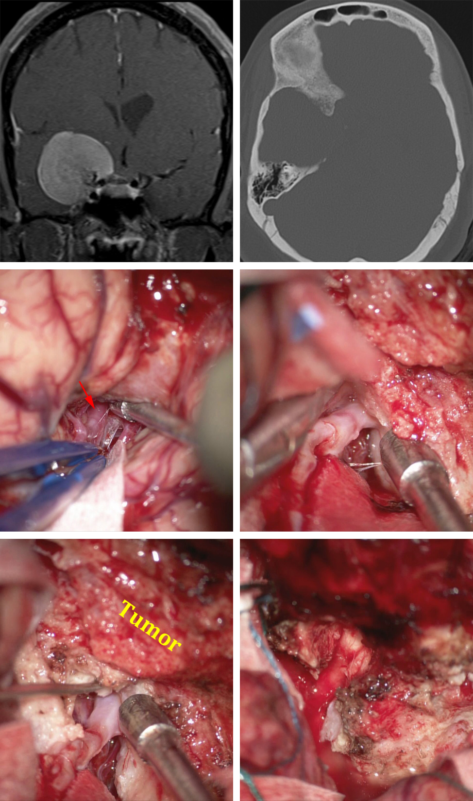 Figure 18: The MR images of the first row demonstrate the mass and associated orbital roof hyperostosis. Extradural clinoidectomy decompressed the optic nerve early. The distal MCA branches were dissected and protected (second row). As dissection continued toward the skull base, the tumor was divided along the ICA; this maneuver facilitated tumor mobilization (last row, left image). The optic nerve was found distal in its foramen and generously released via removal of the intracanalicular portion of the tumor (last row, right image).
