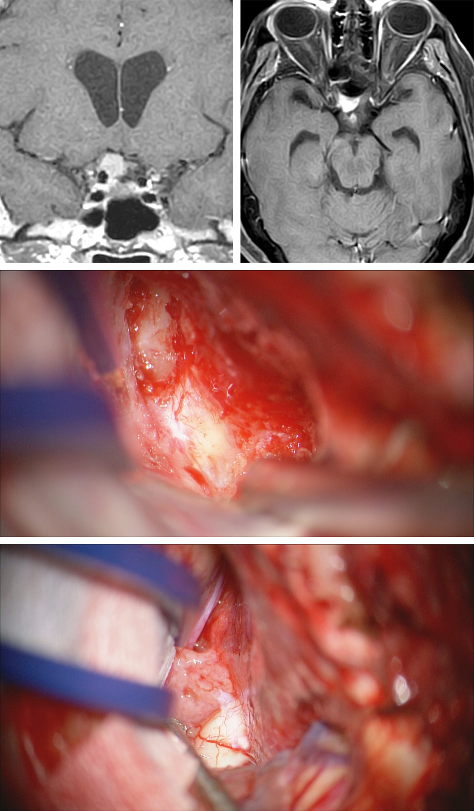 Figure 19: A right optic foramen, group 3 meningioma, is demonstrated (top image). Extradural clinoidectomy unroofs the optic nerve (middle photo) in preparation of intradural opening of the falciform ligament and dissection of the tumor within the optic canal. The extracanalicular extent of the tumor along the medial aspect of the nerve is shown upon dural opening and elevation of the frontal lobe (lower image).