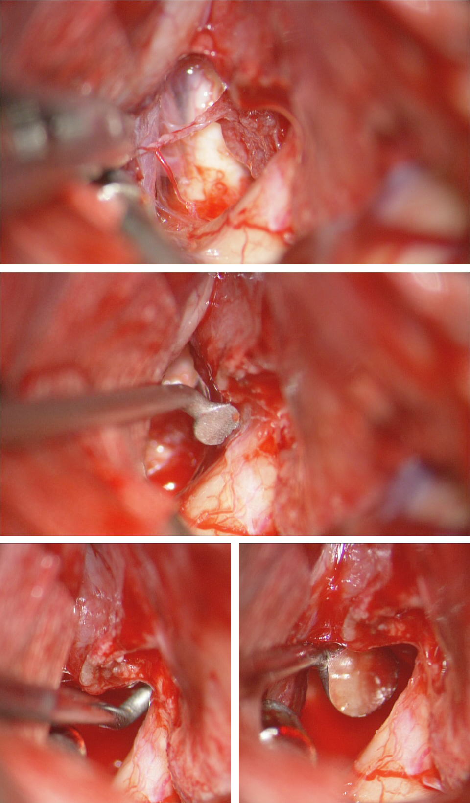 Figure 21: The small perforating vessels to the chiasm are protected (top image) while an angled dissector mobilizes the more intracanalicular portion of the tumor around the medial optic nerve within the operative blind spot (middle image). Angled straight dissector inspects the distal part of the canal to ensure complete decompression of the canal; this finding is also verified using a microsurgical mirror (lower images).