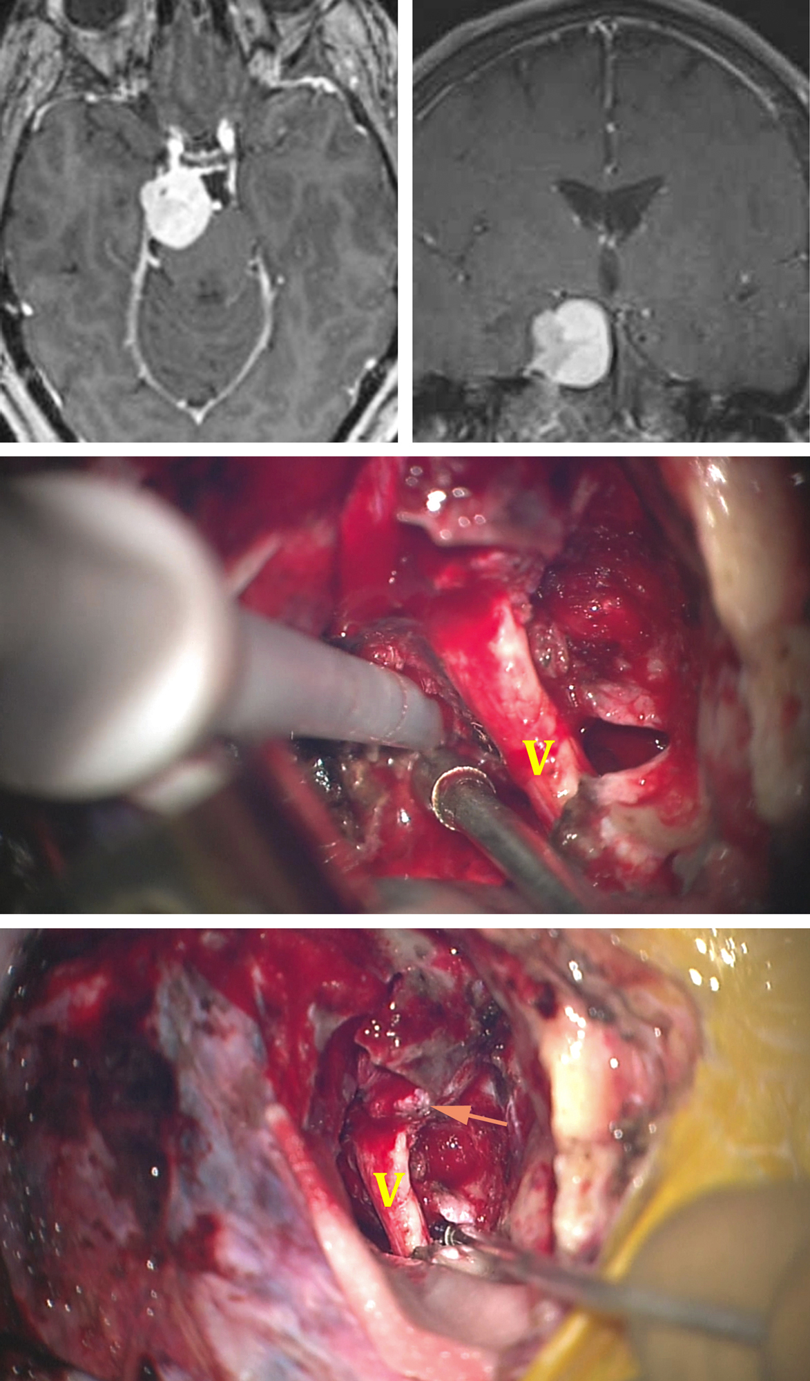 Figure 7: This right-sided upper petroclival meningioma was removed via an anterior petrosectomy (top photos). Note the slight extension of the tumor into the cavernous sinus. The middle intraoperative image illustrates the use of an ultrasonic aspirator for removing the tumor around CN V. The bottom image shows a final view of the operative field after tumor removal. The residual tumor infiltrating the cavernous sinus is labeled with an arrow.