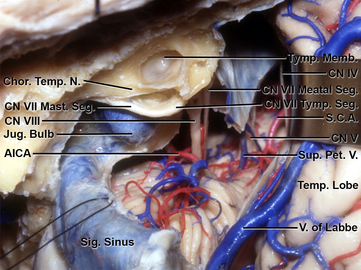Figure 5: If necessary, the semicircular canals and vestibule can also be removed to complete the translabyrinthine approach. However, this approach is rarely necessary. (Courtesy of AL Rhoton, Jr.)