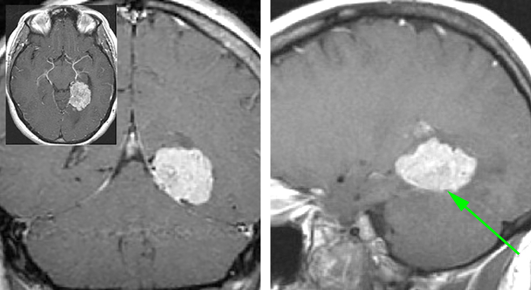 Figure 1: A medial tentorial meningioma is shown. I approached this tumor via the supracerebellar transtentorial approach to avoid the risks of retraction on the dominant temporal lobe.