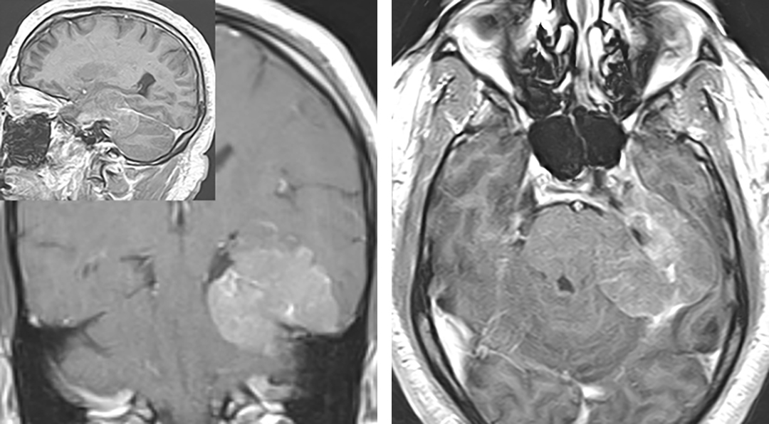 Figure 2: Tentorial meningiomas, such as this one, may extend along the entire surface of the tentorium. In this patient, the posterior fossa component led to compressive symptoms. The tumor was removed through a two-stage operation via retromastoid and subtemporal craniotomies.