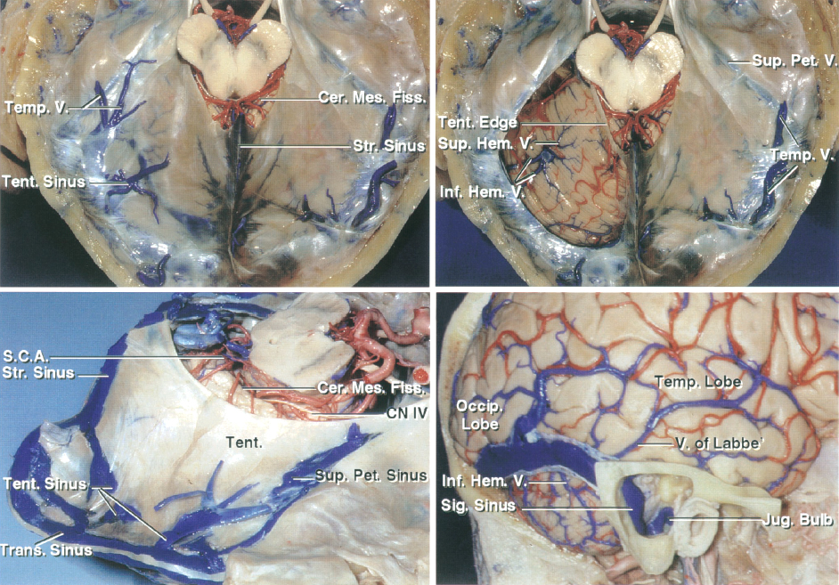 Figure 3: Superior view of the tentorium cerebelli with the left half removed to show the infratentorial structures (top row of images). Lateral view of the tentorium and the superficial anatomic landmarks are indicated (lower row). Note the steep angle of the tentorium and the required extensive temporal lobe retraction to reach the medial edge via the subtemporal route (images courtesy of AL Rhoton, Jr).