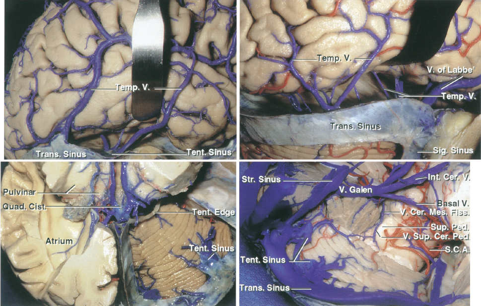 Figure 4: The subtemporal route toward the medial tentorium can be problematic because the temporal lobe elevation places the vein of Labbe and other temporal bridging veins at risk (upper row). The neurovascular anatomy at the tentorial incisura is summarized (lower row)(images courtesy of AL Rhoton, Jr).