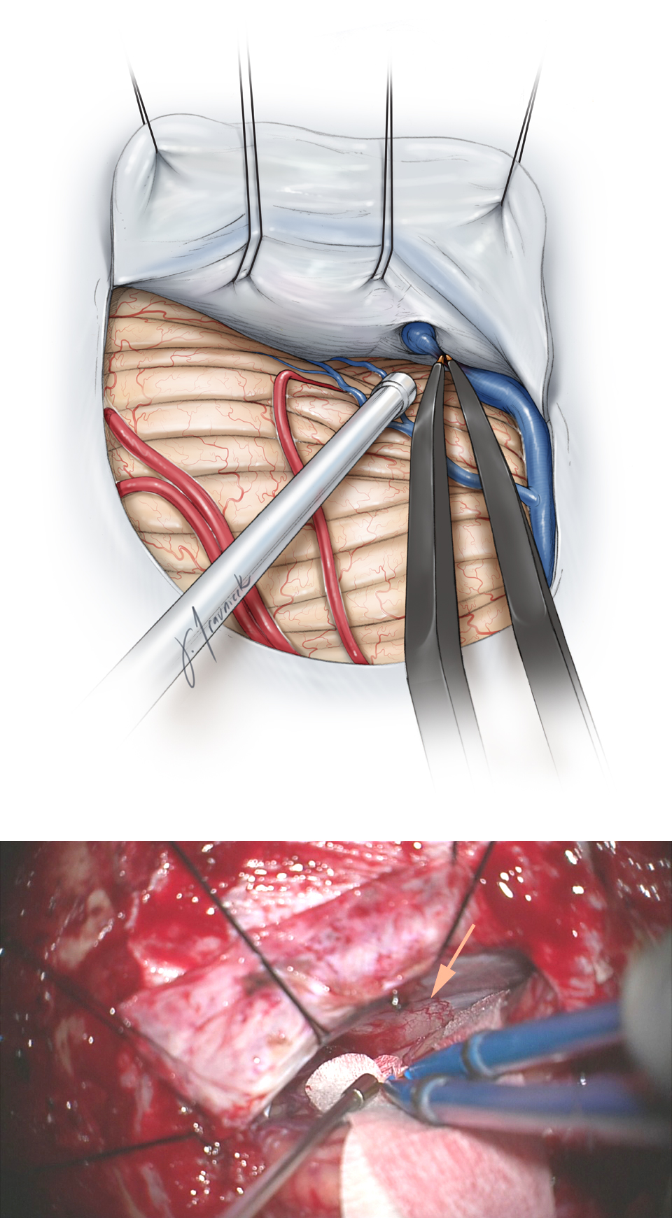 Figure 5: A parasagittal bridging vein may be disconnected for expansion of the supracerebellar corridor (top illustration). The tumor-infiltrated tentorium (arrow) is exposed (bottom photo).