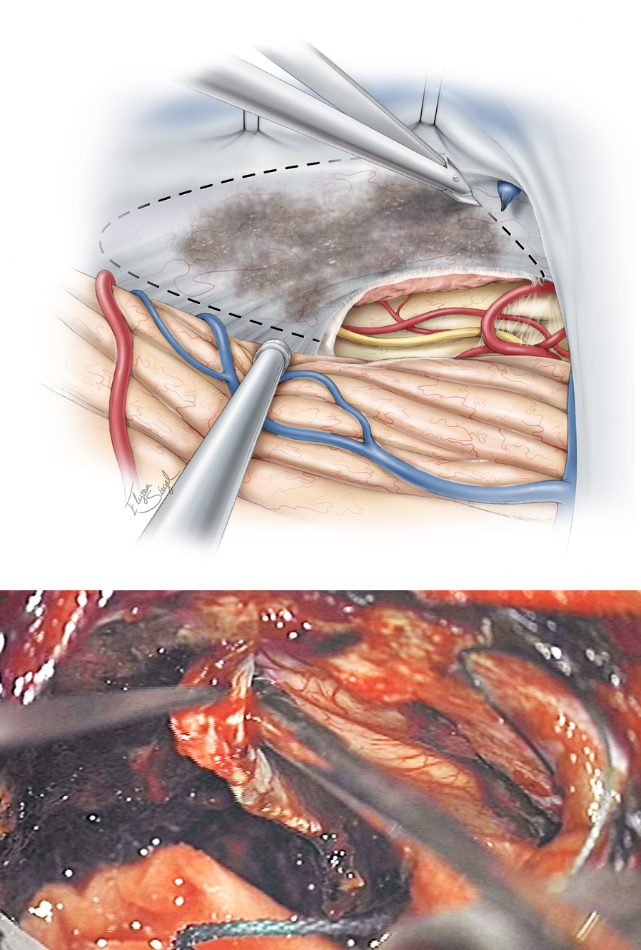 Figure 10: A generous section of the tentorium that contains the base of the tumor and spans the petrous ridge to the midline is incised while the operator identifies and preserves the trochlear nerve along the entire anterior edge of the tentorium. Occasional bridging veins draining the occipital lobe and entering the superior aspect of the tentorium may be sacrificed. The medial tentorial cut should preserve the straight sinus and its tributaries. Venous lakes may be present, and venous bleeding through the leaflets of the tentorium should be controlled using thrombin-soaked Gelfoam packing. Bipolar cauterization will exacerbate the bleeding by shrinking and tearing the tentorial edges.