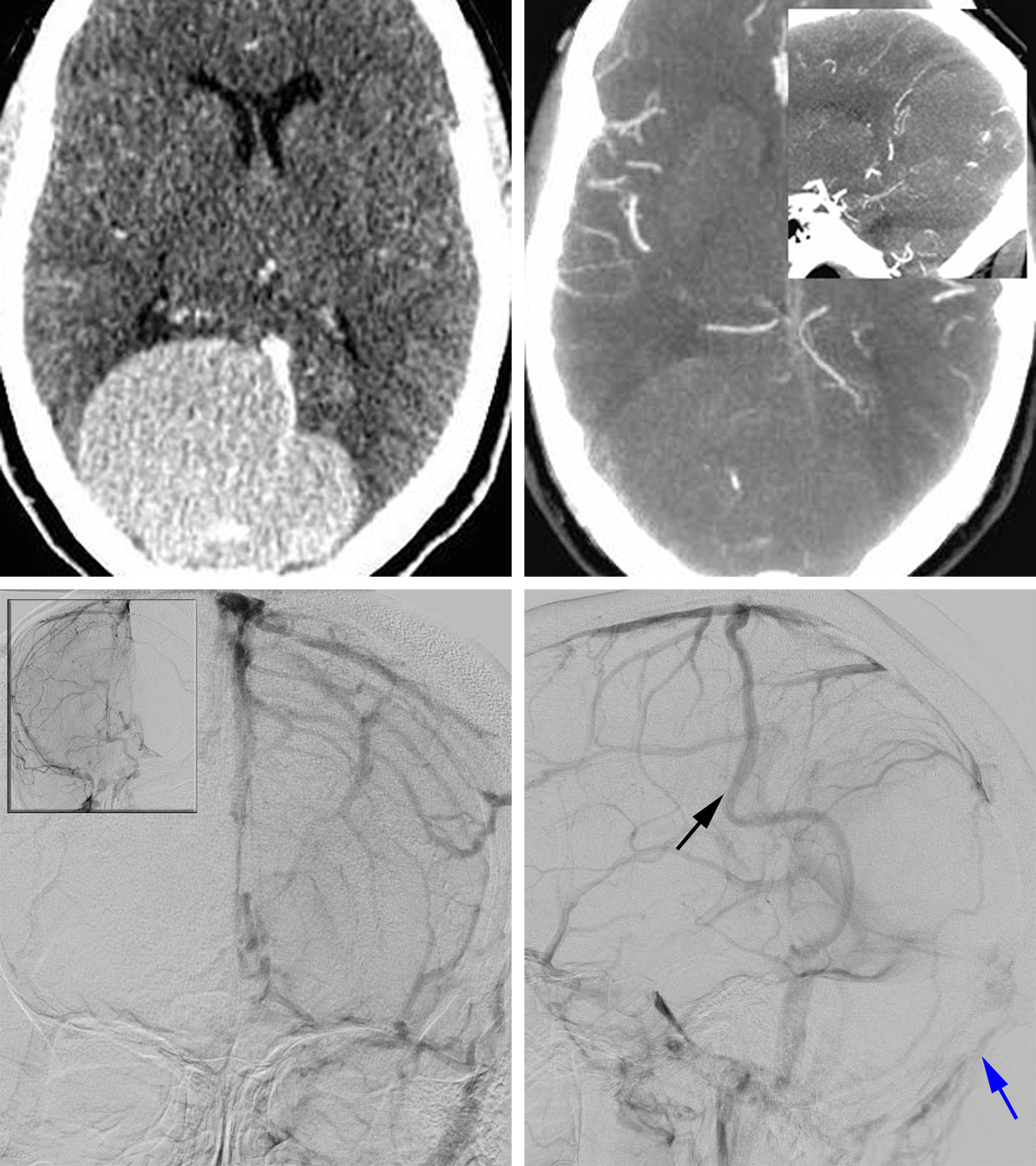 Figure 1: A large peritorcular meningioma is noted. This patient could not undergo MR imaging because of the presence of a ferromagnetic foreign body. CT angiogram demonstrated occlusion of posterior sagittal and transverse sinuses as well as the torcula (top row of images). Anteroposterior and lateral angiogram images (bottom row of images) revealed tumor arterial supply from the petrosquamosal divisions of the middle meningeal arteries bilaterally. There was complete occlusion of the superior sagittal sinus at the level of the parietal lobe with venous outflow from the superior sagittal sinus into bilateral dural and scalp veins as well as into the parietal cortical veins. There was some patency of the straight sinus into the torcula which drained via a right paramedian emissary vein. There was prominence of the precentral cerebellar and supravermian veins, raising the possibility of retrograde flow from the straight sinus and vein of Galen into the supravermian veins. Note the hypertrophied osseous collateral venous channels within the posterior fossa (blue arrow); these were protected during the craniotomy. The vein of Trolard was also very prominent (black arrow).