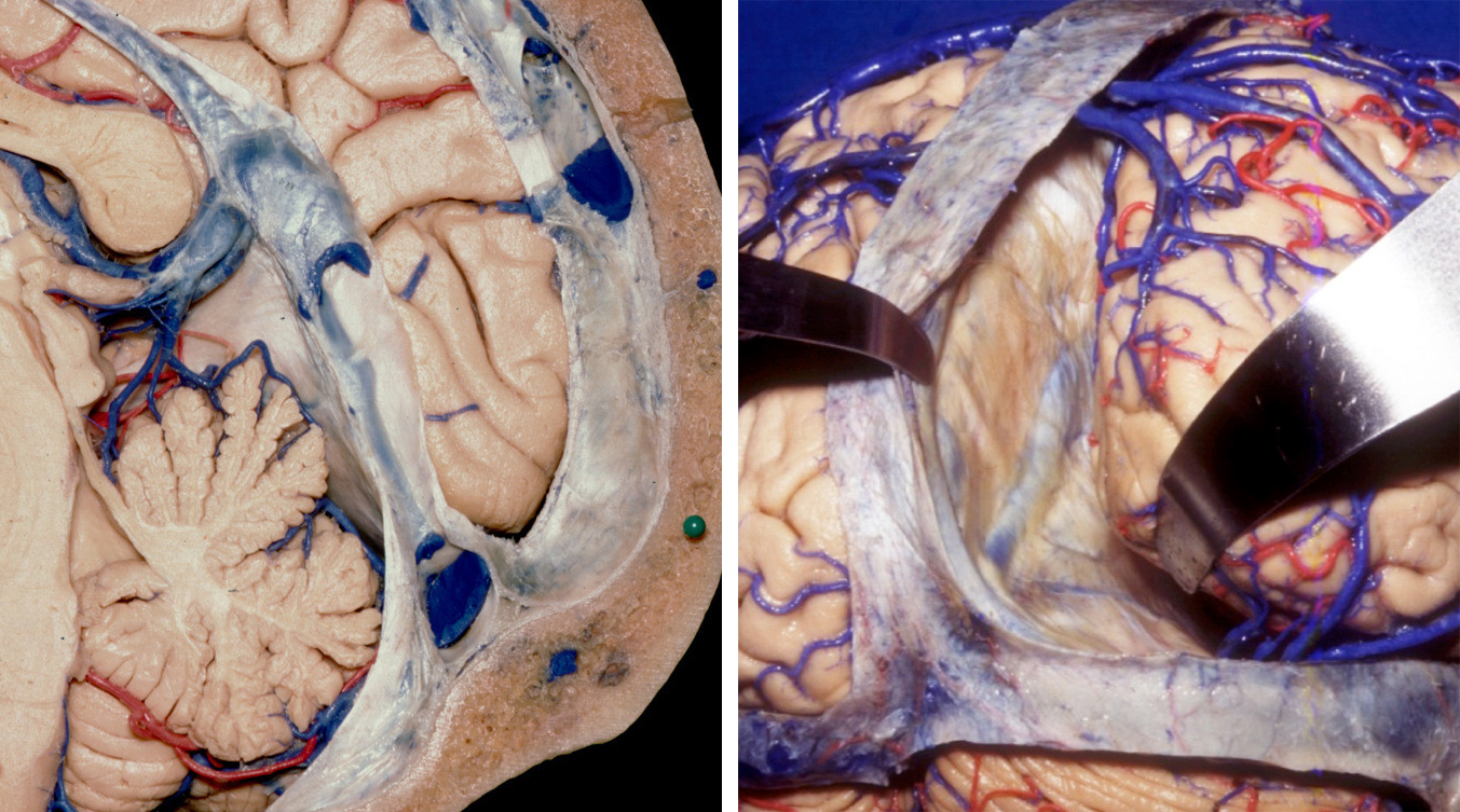 Figure 2: The relationship of the torcula to the occipital protuberance on the sagittal plane is shown (left image). To expose the torcula, I drill perpendicular to the oblique surface of the skull at this location. The junction of the dural sinuses (superior sagittal, transverse, and straight sinuses) is also demonstrated via mobilization of the right hemisphere (right image). The straight sinus often has numerous venous lakes at its periphery; these lakes can be a serious source of bleeding during surgery and should be packed with thrombin-soaked gelfoam and not coagulated. (Images courtesy of AL Rhoton, Jr.)