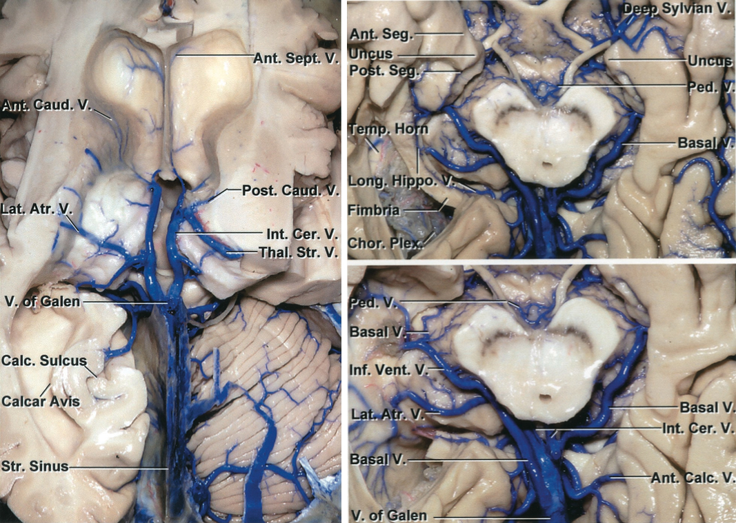 Figure 4: The deep venous system from a superior view (left image) and inferior view (right image) is shown in detail. Venous injury is one of the primary sources of morbidity during meningioma resection in the region. (Images courtesy of AL Rhoton, Jr.)