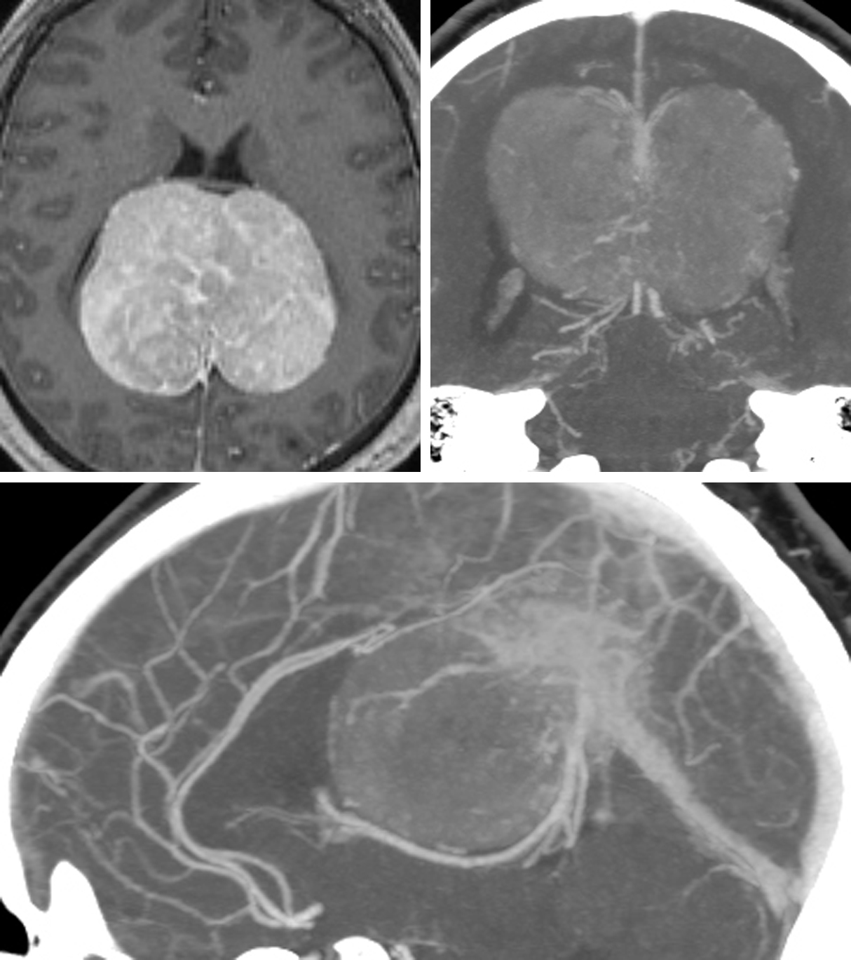 Figure 1: A giant anterior falcotentorial meningioma is shown (top row of images). Note the location of the deep veins at the lower pole of the tumor (bottom image). The major dural sinuses were unaffected by this tumor.