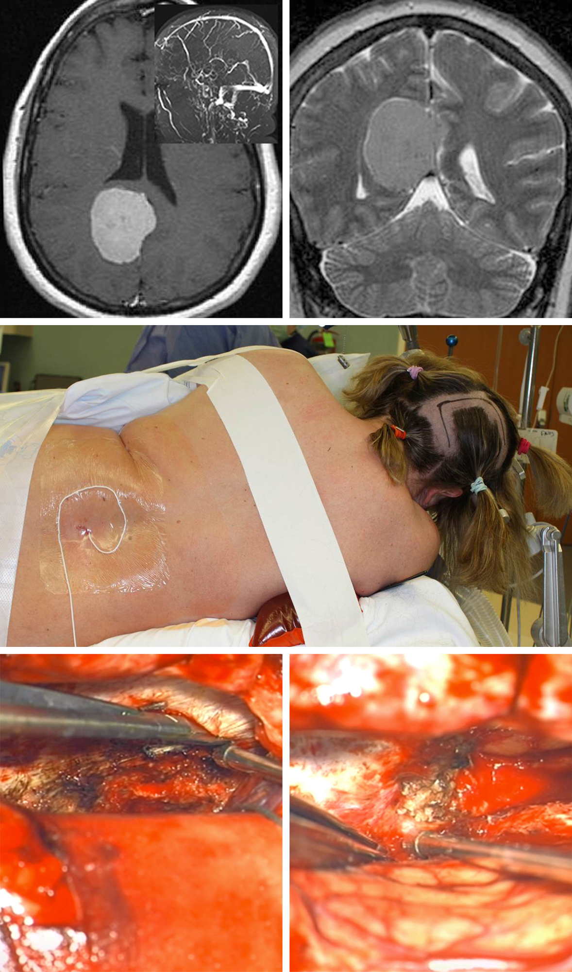 Figure 10: A more straightforward posterior parafalcine/anterior falcotentorial meningioma is shown. MR venogram demonstrated patency of all the deep veins and straight sinus (top row of images). The patient underwent an interhemispheric parieto-occipital craniotomy and transfalcine removal in the park bench position. A lumbar drain was utilized early in surgery for smooth entry into the interhemispheric space. The tumor side was placed in the dependent position to facilitate the use of gravity retraction (middle row of image). The images in the bottom row show the transfalcine incision and the final result of tumor removal away from the straight sinus.