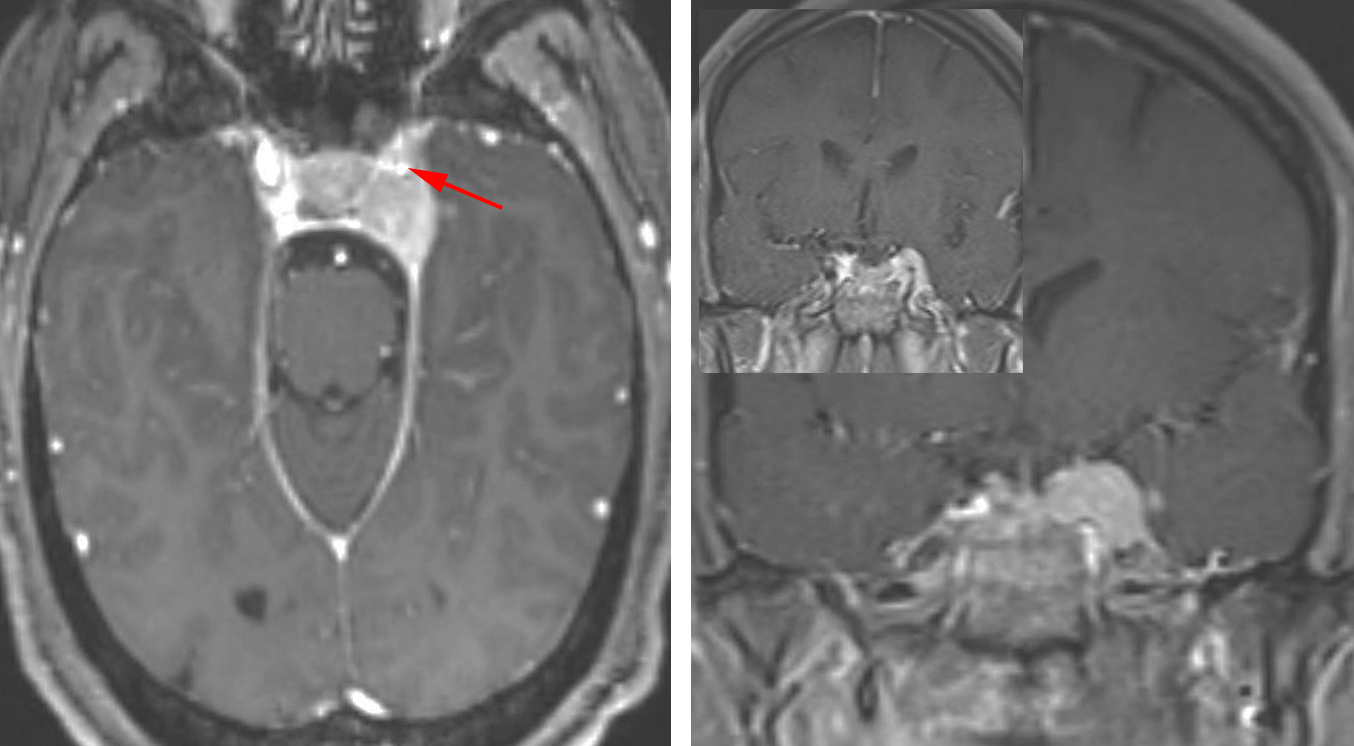 Figure 1: A small left cavernous sinus meningioma is shown. Note the encased and stenosed cavernous ICA (arrow), precluding aggressive dissection around the artery. The mass has pushed the lateral dural margin of the cavernous sinus outward. A dural tail along the edge of the tentorium is also apparent.