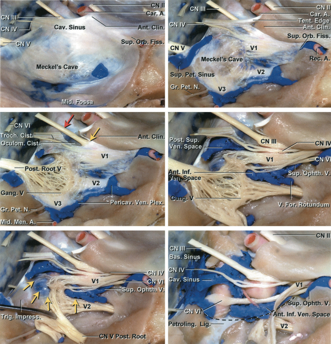 Figure 2: The relevant anatomy is demonstrated through progressive, layered, and stepwise extradural dissection of the right cavernous sinus. The lateral wall of the cavernous sinus houses CNs III, IV, V1, and V2, with CN VI passing through the sinus itself by the ICA (left upper photo). The outer layer of the temporal lobe dura has been peeled away from the lateral wall of the cavernous sinus, exposing CNs III and IVentering the roof of the cavernous sinus and passing forward through the superior orbital fissure (right upper photo). CN III enters a short cistern in the sinus roof (red arrow) and does not become incorporated into the lateral wall until it reaches the lower margin of the anterior clinoid process (yellow arrow, left middle image). The remaining dura covering the lateral wall has also been removed (right middle image). The posterior trigeminal root has been reflected forward to expose the posterior part of the lower margin of the cavernous sinus (yellow arrow) in the area medial to the trigeminal impression on the petrous apex (left lower photo). The trigeminal nerve and its three divisions have been reflected forward to expose the venous spaces of the cavernous sinus (right lower image). (Images courtesy of AL Rhoton, Jr.)