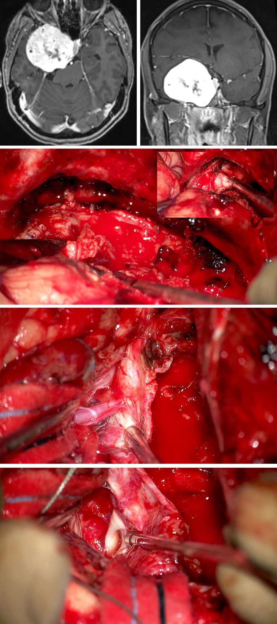 Figure 13: The images in the top row show the large cavernous sinus meningioma. A right-sided extended pterional approach was selected. Because of the large size of this tumor, a combination of both intra- and extradural routes was used. The lateral wall of the sinus was incised intradurally (second row of images), tumor debulked, and the trigeminal nerves identified (inset image). Upon deflation of the sinus wall, the adherent middle cerebral artery branches were found (third row). Upon near gross total removal of the tumor, CN III was apparent (bottom row of images).