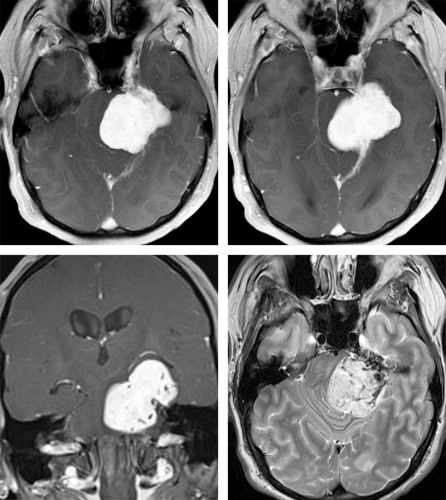 Figure 1: Petrous apex meningiomas straddle the petrous ridge. The exuberant vascularity at the base of the tumor is indicated by numerous flow-voids on the T2-wighted sequences (right lower image). Brainstem compression led to imbalance in this patient.