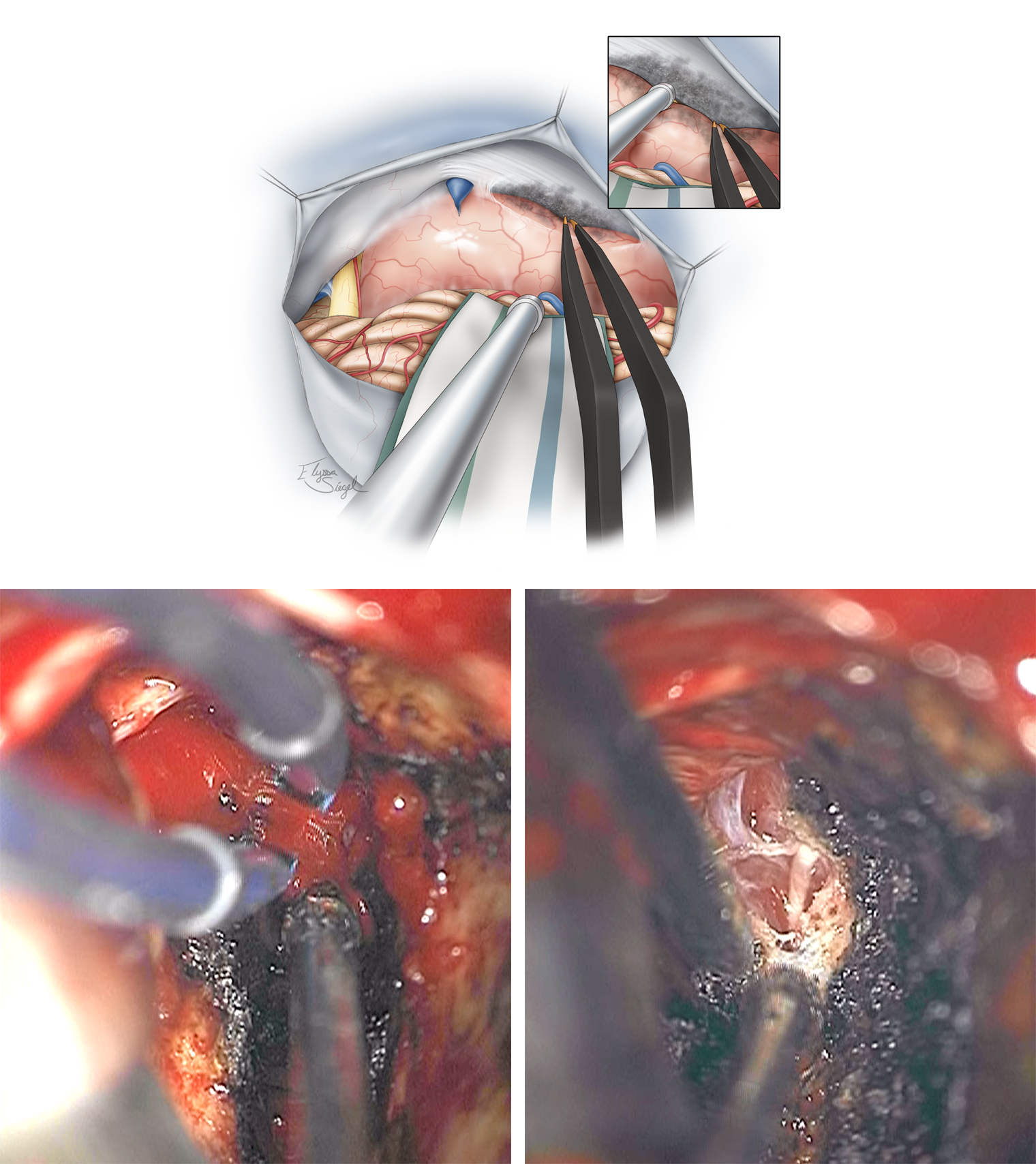 Figure 7: The first important step in managing the tumor involves its devascularization along the petrous dura, petrotentorial junction, and the tentorium. Torrential bleeding from this junction is a common occurrence during mobilization of the tumor (left lower photo). Bipolar coagulation and patience are needed to control the bleeding. The CN IV is displaced anteriorly by the tumor capsule and should be protected and kept out of harm's way (right lower photo).