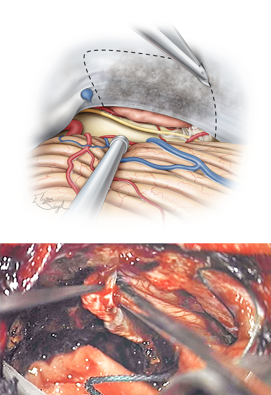 Figure 13: The undersurface of the tentorium is coagulated and a wide window of this structure is incised to expose the supratentorial component of the tumor. The Karlin blade is used to perform the dural incision parallel to the transverse sinus. The lateral incision follows the contours of the petrous ridge while the medial tentorial cut is just lateral to the straight sinus. Venous bleeding from the leaflets of the tentorium is controlled with Gelfoam packing.
