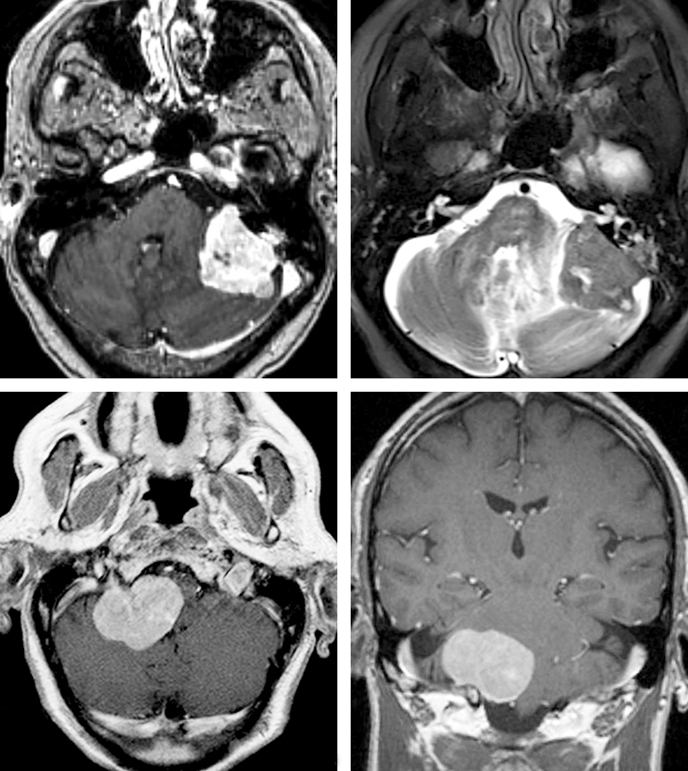 Figure 1: A left-sided petrous/CP angle meningioma (top row) is shown. Petrous meningiomas are typically centered away from the IAC and have a broad attachment to the posterior aspect of the petrous dura. The images in the lower row demonstrate a right-sided jugular foramen meningioma without a significant intracanalicular extension.