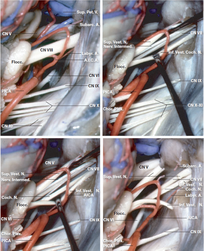 Figure 3: Additional detailed anatomy of the cranial nerves within the posterior fossa is illustrated.