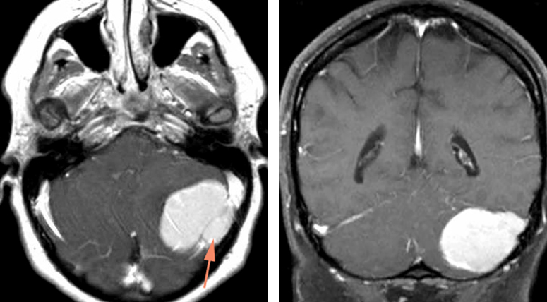 Figure 15: A lateral cerebellar meningioma with occlusion of a segment of the transverse sinus is shown. Note the component of the tumor filling the sinus (left image, arrow). MR venogram confirmed occlusion of this focal segment. This tumor was resected and the affected length of the dural sinus removed via drilling of the bone above and below the transverse sinus. Two silk sutures were used to disconnect the tumor-infiltrated segment from the patent segments. The entry point of the vein of Labbe was preserved.