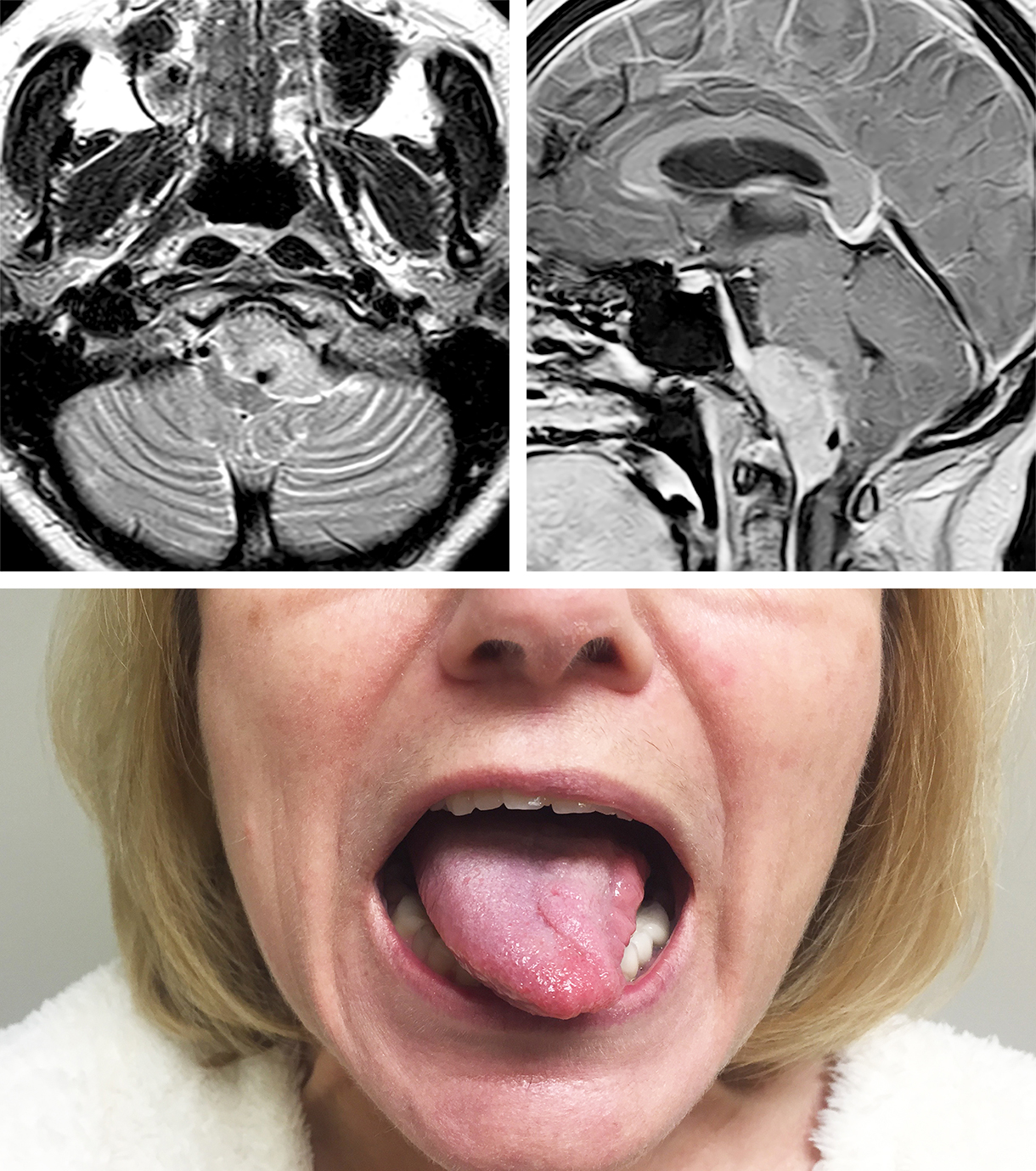 Figure 1: The tongue should be inspected at rest for atrophy and fasciculations. Note the foramen magnum meningioma in this patient associated with tongue atrophy and fasciculations.