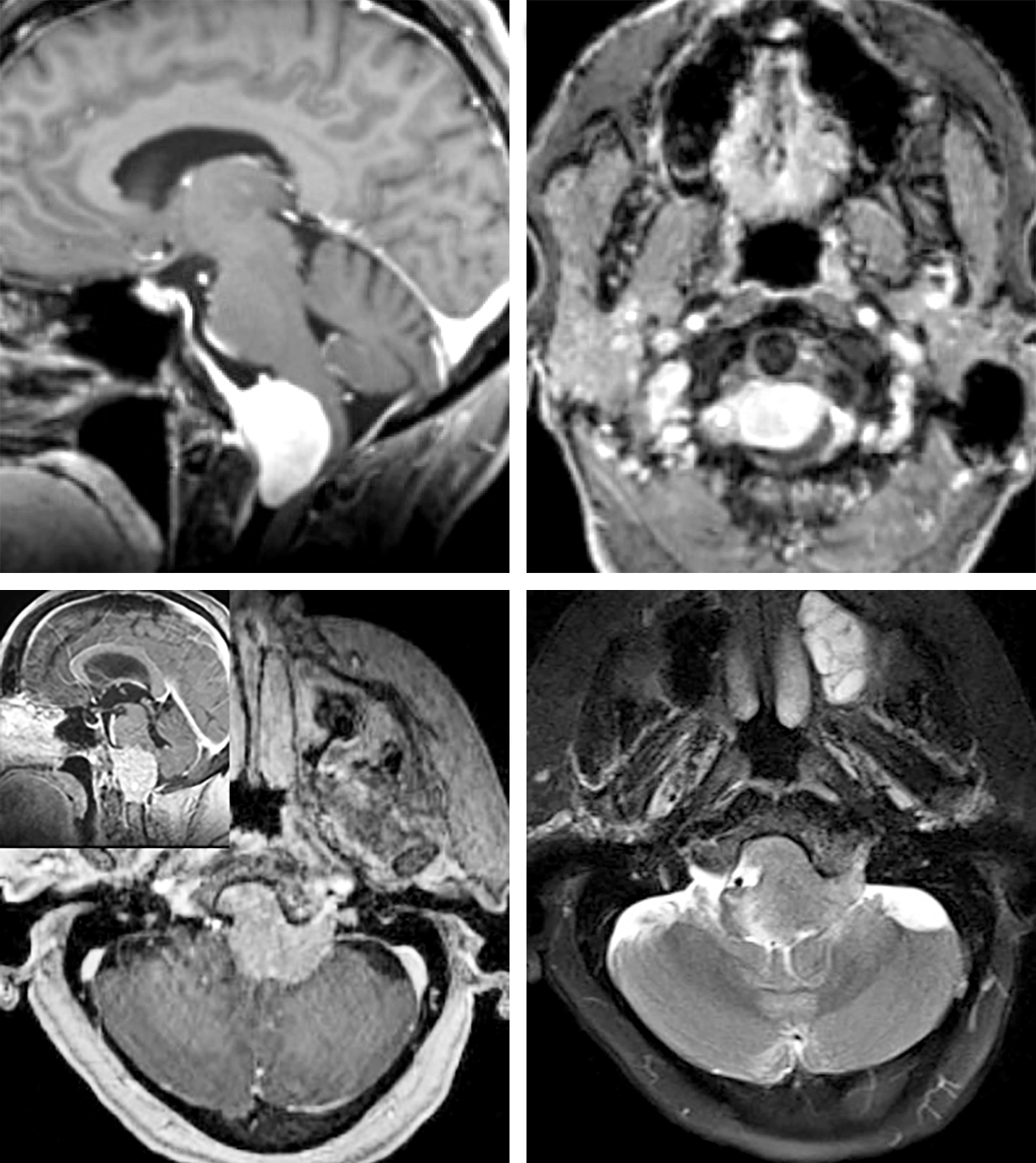 Figure 2: A classic ventral foramen magnum meningioma with a dural tail along the clivus is demonstrated (top row). This tumor was resected using the conservative transcondylar approach described in the following paragraphs. These tumors can infiltrate the jugular foramen and increase the risk of operative intervention. The presence of brainstem edema indicates pial infiltration by the tumor, requiring subtotal resection for preservation of neurological function (another patient, bottom row).