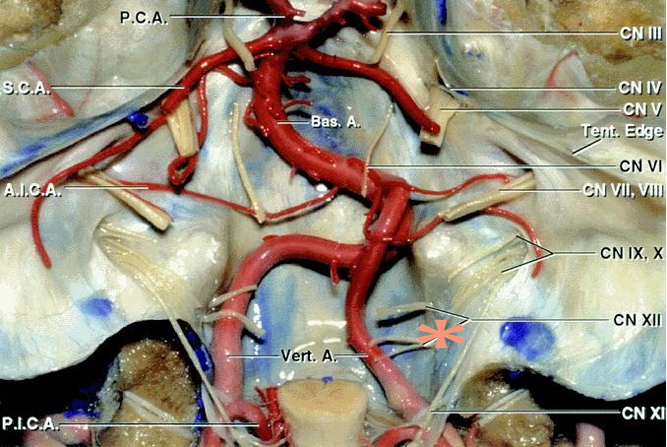Figure 3: A posterior view of the anterior craniovertebral junction with the brainstem removed is demonstrated. Note the location of the cranial nerves (image courtesy of AL Rhoton, Jr). The most common location for the origin of FMMs is noted (*) on the right side.