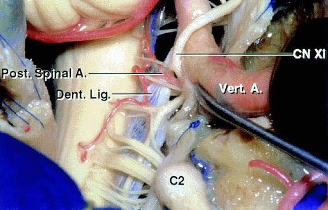 Figure 4: A view of the foramen magnum from the posterolateral approach while the vertebral artery is untethered from its dural sleeve is included. Please note the location of CN XI in relation to the adjacent anatomy (image courtesy of AL Rhoton, Jr). The tumor displaces the dentate ligament and CN XI dorsally.
