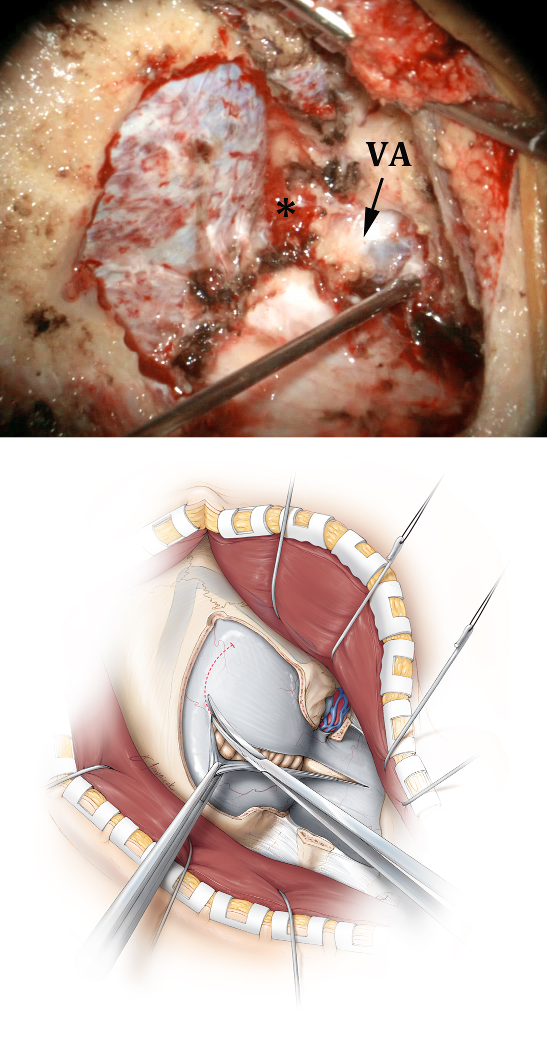 Figure 6: The intraoperative photo at the top demonstrates the vertebral artery (VA) at its entry site into the dura, covered by its venous plexus. Minimal condylar resection (*) is performed.  The intraoperative photos in the following images correspond to the ventral FMM shown in Figure 2, top row.  A curvilinear or hockey stick-shaped dural incision is made (lower image). This method of dural incision permits adequate mobilization of the dura while allowing the operator to create simple edges for watertight approximation at the time of dural closure.
