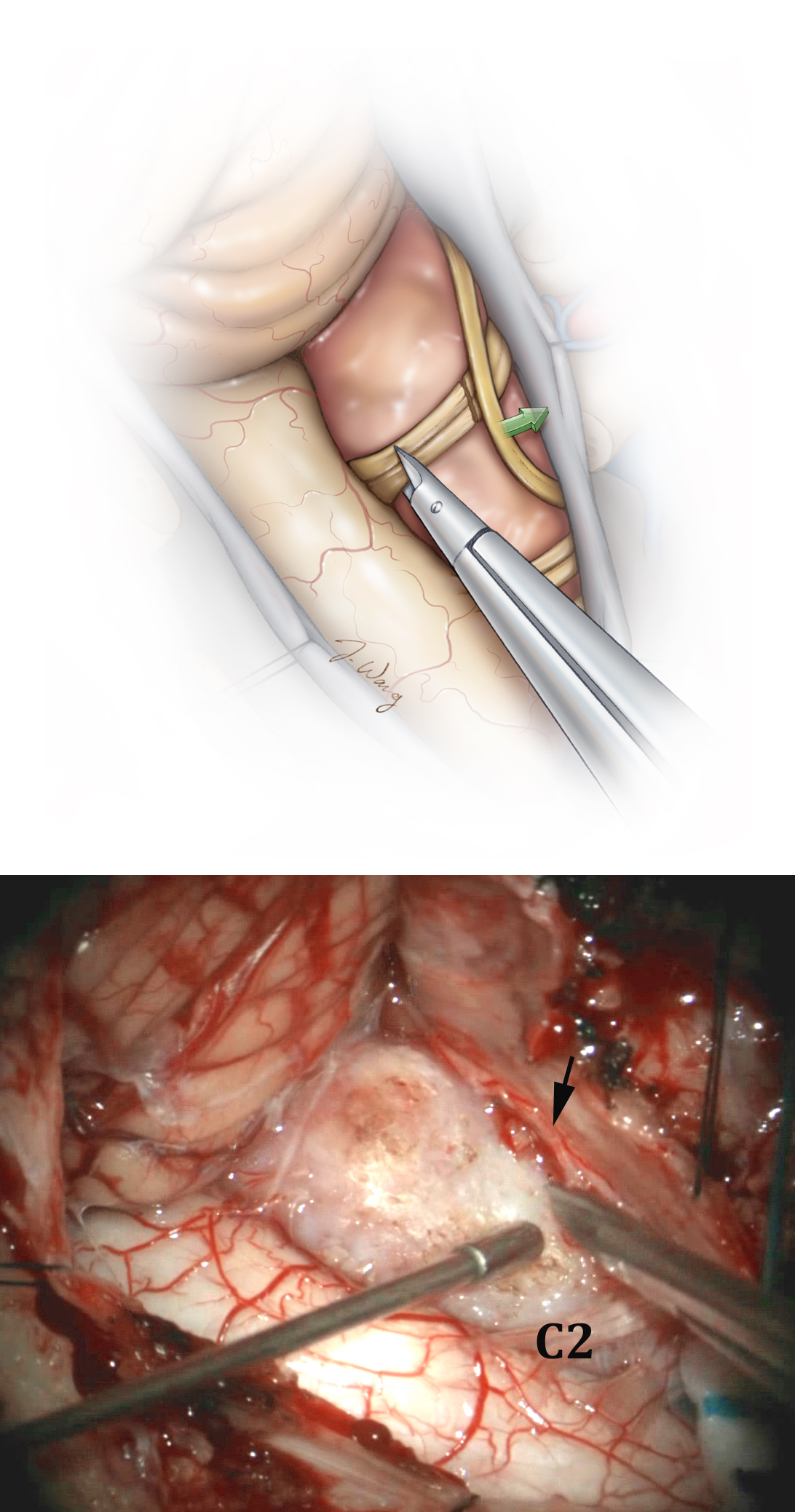 Figure 8: Next, the C1 nerve rootlets are sectioned and CN XI is mobilized laterally (top sketch, green arrow; bottom photo, black arrow). The latter cranial nerve can be adherent to the tumor, and its adhesions are sharply divided. Excitation of the nerve can lead to intermittent movements of the shoulder and surgical target. I often section all rootlets of C1 and one or two spinal rootlets of CN XI to allow adequate exposure of the tumor and mobilization of CN XI. I have not witnessed any significant permanent postoperative shoulder weakness because of this maneuver. The tumor capsule is coagulated.