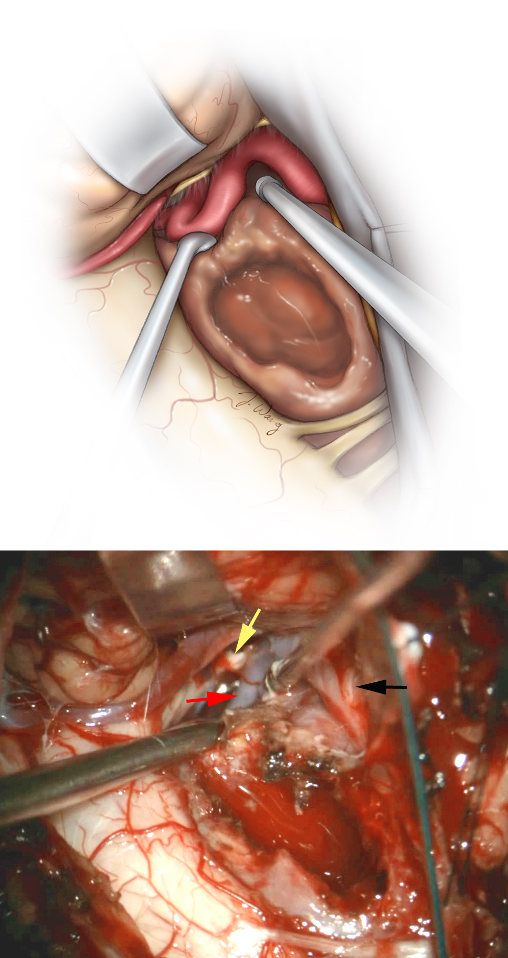 Figure 9: Mobilization of the debulked tumor is an important step in identification and localization of the important neurovascular structures. The vertebral artery and PICA can be adherent to the lateral and superior poles of the tumor capsule or encased within the mass (bottom photo, red arrow). The intradural entry site of the artery is exposed (black arrow). The lower cranial nerves are displaced superiorly and often not adherent to the tumor unless the tumor extends into the jugular foramen (yellow arrow). The vertebral artery may be dissected free and covered with a small cottonoid patty—The use of an ultrasonic aspirator close to the artery can easily lead to its irreversible injury.