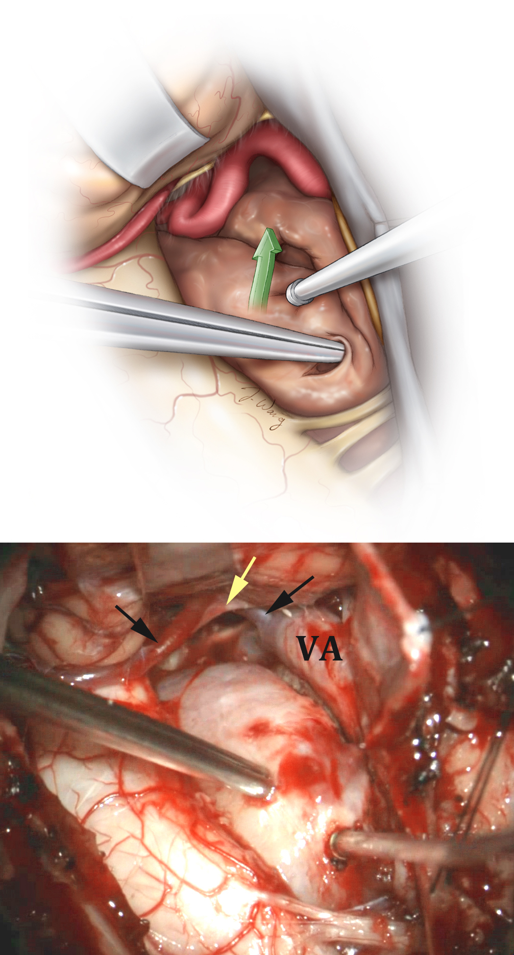 "Figure 10: Once the tumor is centrally debulked, its capsule can be mobilized laterally and inferiorly. Yellow and back arrows identify the lower CNs and the PICA, respectively, that have been dissected free. Mobilization of the capsule away from the brainstem and spinal cord is done with care, and all of the pial adhesions should be sharply divided and small tumor feeders coagulated. Sharp forceps may be used to punch a hole within the capsule; this maneuver will create a ""handle"" for the forceps to ""drag"" and ""fold"" the tumor capsule laterally. Care must be taken to prevent the tumor capsule from abruptly returning in the medial direction to its original state and injuring the spinal cord."