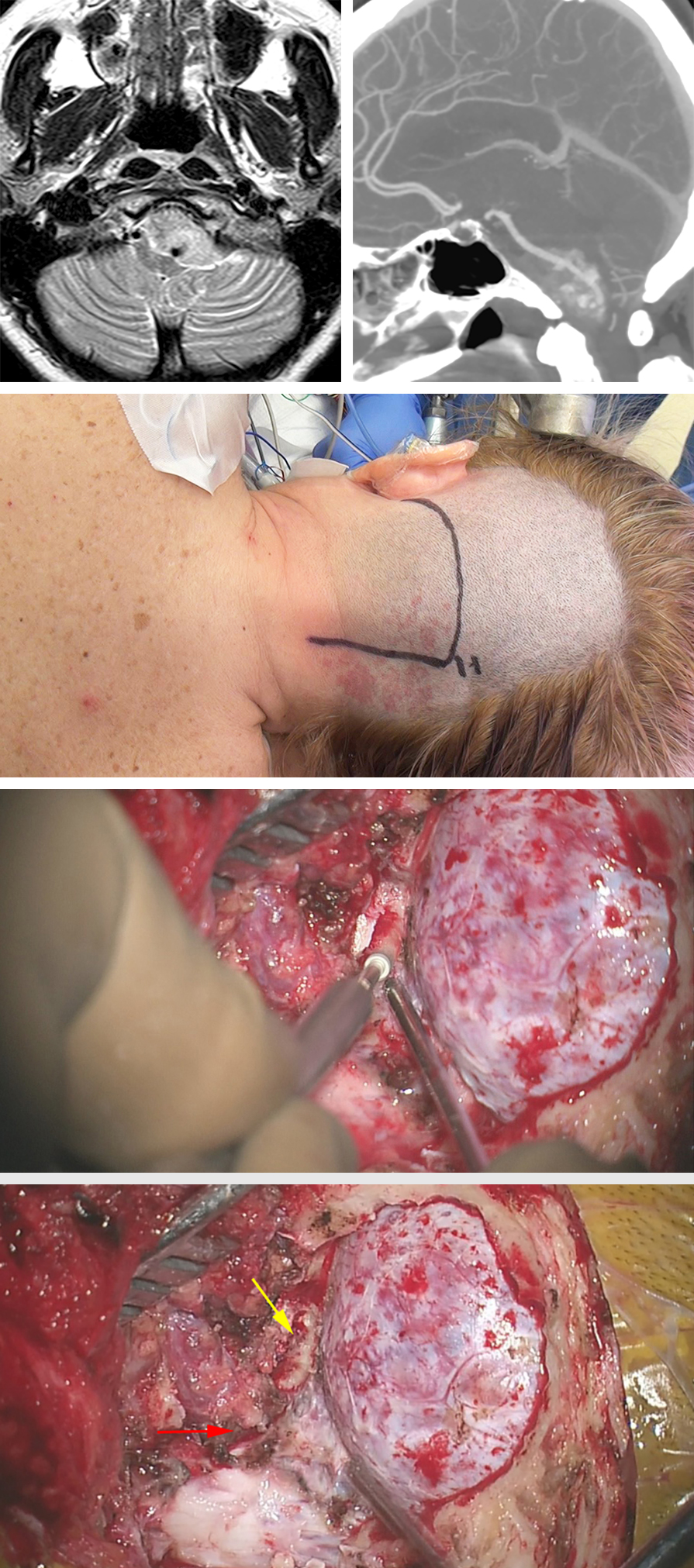 Figure 15: A left-sided fibrous FMM is demonstrated. Note the tumor was engulfing the vertebral artery; the CTA demonstrates the route of artery. The approach is demonstrated in the following images of this series. The extent of minimal condylectomy is marked with a yellow arrow and the dural entrance of the artery is noted with a red arrow.
