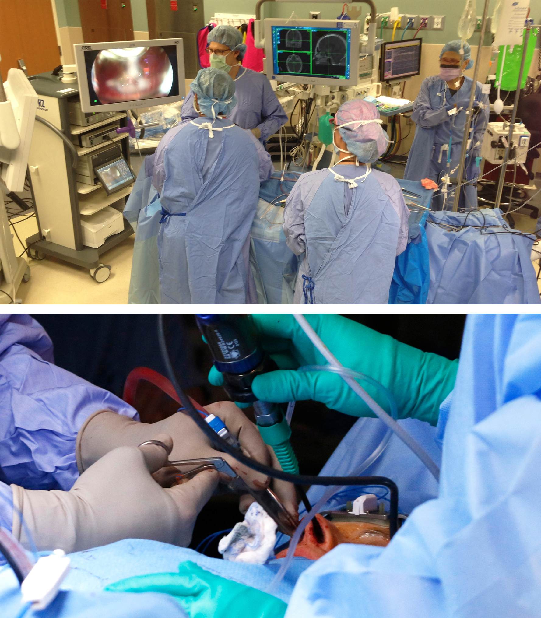 """Figure 1: The operating room setup for an endoscopic skull base procedure is shown (top photo). This setup is fitted for a right-handed surgeon standing on the right side of the patient. Please note the location of the two video monitors across each operating surgeon. The navigation monitor is placed to ensure that the neurosurgeon conducting the microsurgical portions of the operation can view it. The patient's head is turned 30 degrees toward the side of the surgeon so that the surgeon is not leaning over the patient's head. Note the location of the anesthesiologist. The neurosurgeon uses both of the patient's nostrils for microsurgery based on the location of the surgical target relative to the midline. I rely heavily on the """"cross-court"""" approach. In the bottom photo, the left side of the surgical target is aimed at while the endoscope remains in the patient's right nostril. In general, maintaining the suction device and endoscope in one nostril with the endoscope above the suction while using the dissector in the other nostril minimizes the risk of """"swording"""" and provides the highest degrees of surgical freedom and maneuverability for the instruments."""