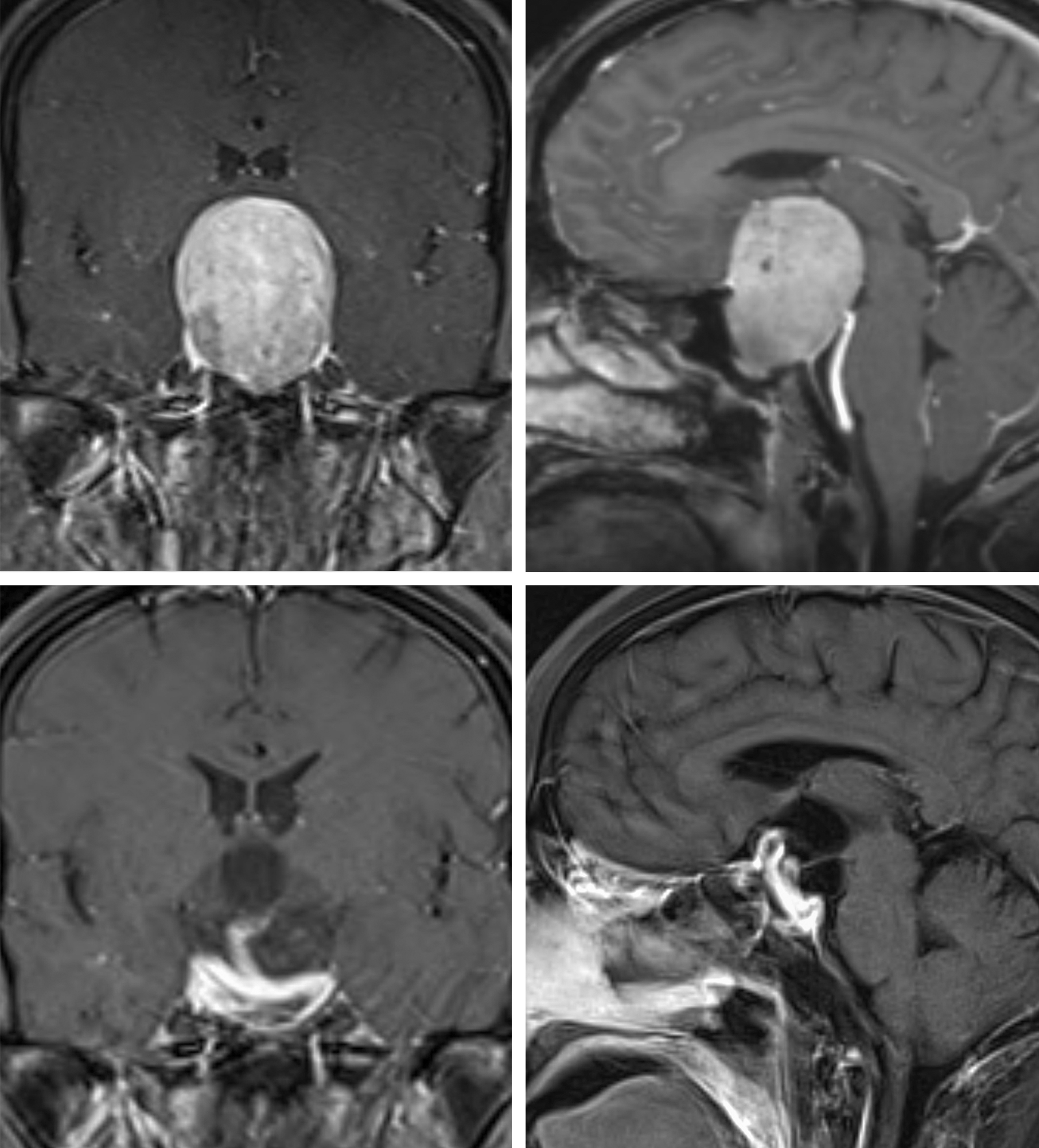 Figure 1: Giant pituitary adenomas can present in a variety of shapes; the morphology of the tumor can significantly affect the technical difficulty of resection. A compact globular morphology is shown in the images in the top row. Cavernous sinus invasion is not evident. Endoscopic endonasal transsphenoidal surgery is effective in gross total tumor resection while preserving the pituitary gland (bottom row).