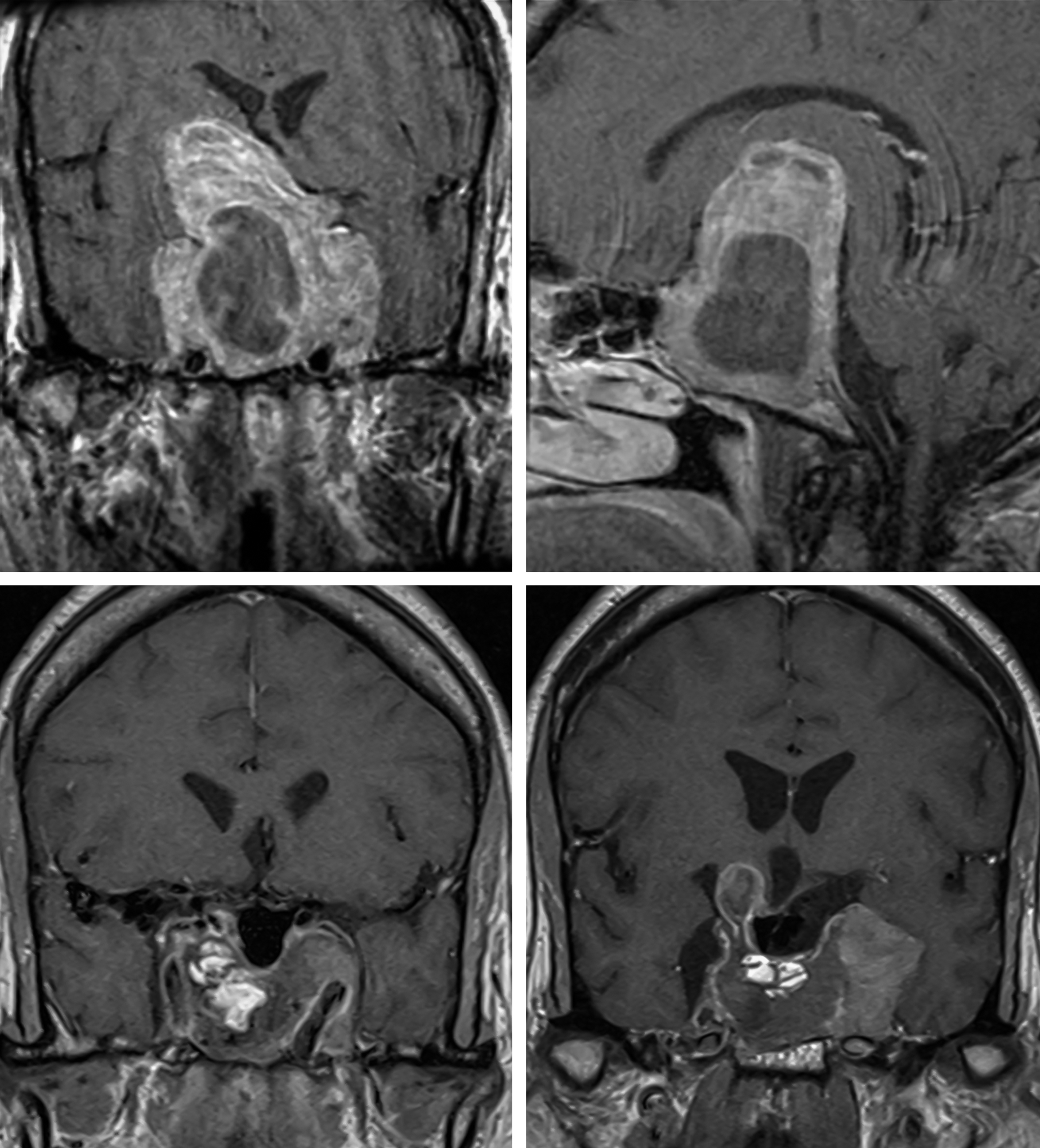 Figure 2: The asymmetric tumors with significant cavernous sinus invasion are included (top row of images); this morphology provides more technical challenges and effective resection is unlikely. Transsphenoidal surgery was successful for removal of the majority of this partially cystic tumor, but the lateral intracavernous component was not reachable (bottom row). Please note the fat packing in the sella.