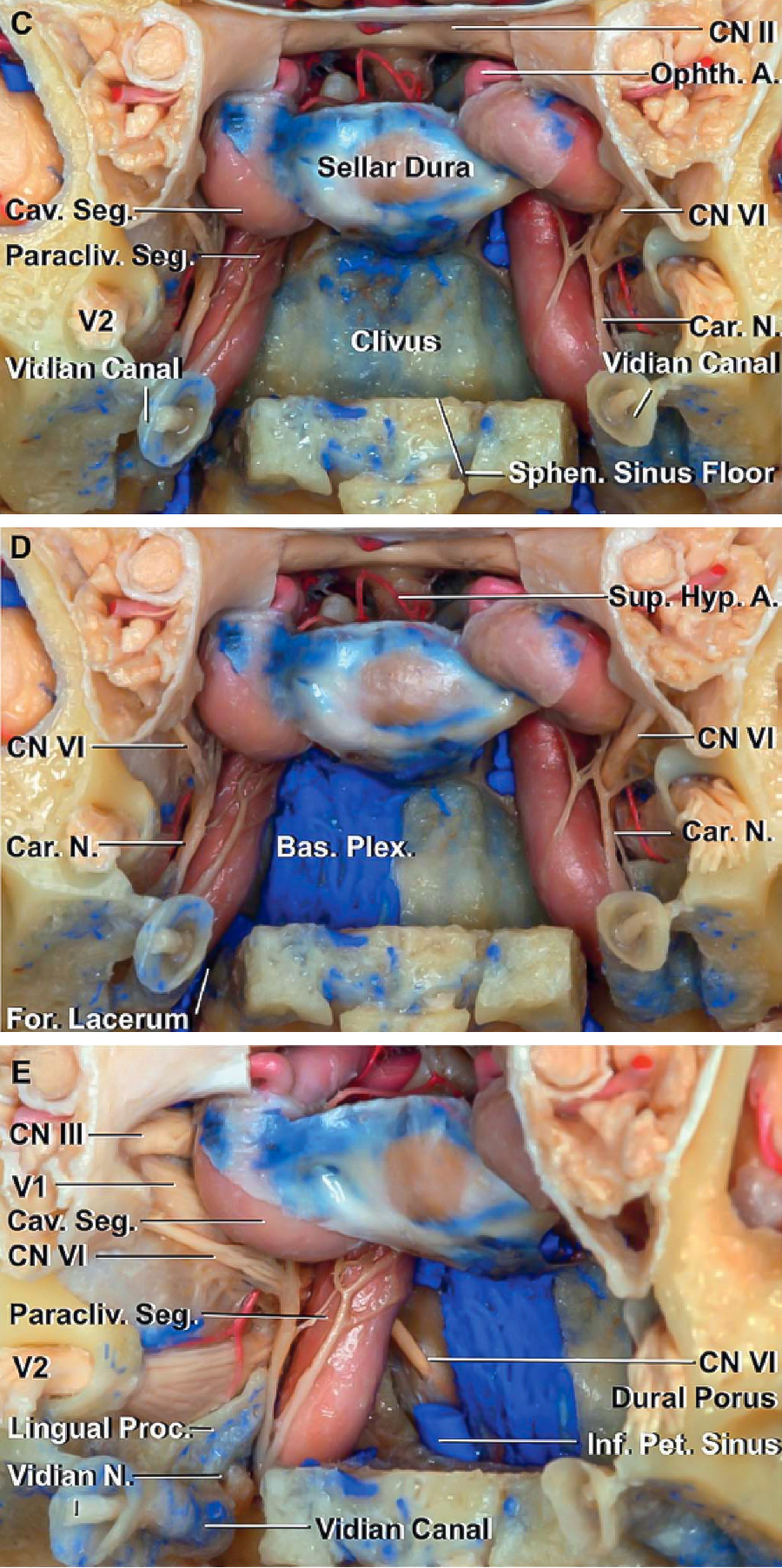 Figure 4: The medial wall of the cavernous sinus with its relationship to the cavernous carotid and the pituitary gland are shown (upper photos). Please note the location of the abducens nerve within the cavernous sinus and the position of the vidian nerve in relation to the carotid artery (middle and bottom photos). (Images courtesy of AL Rhoton, Jr.)