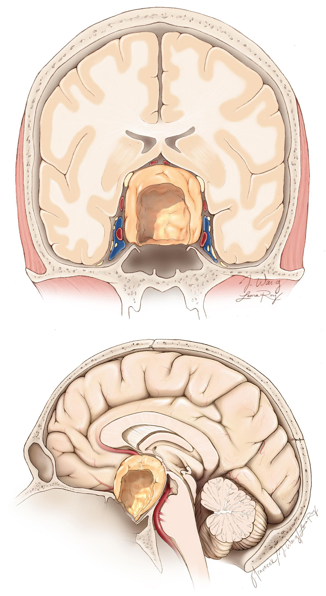 """Figure 5: The inadequate extent of bone removal at the lateral and anterior floor of the sella (""""traditional"""" bone removal for """"standard"""" macroadenomas) precludes the operator from reaching the lateral and anterior borders of giant tumors. Suboptimal removal of the lateral edges of the tumor will prevent the descent of the symptomatic suprasellar section."""