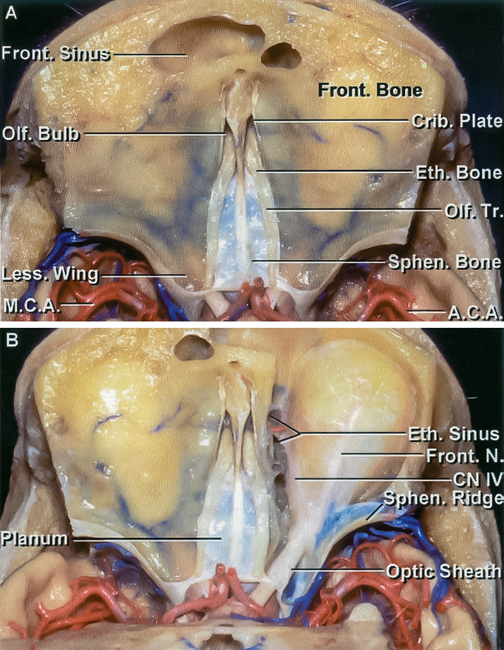 Figure 3: Superior view of the olfactory groove and its anatomic relationships to the surrounding structures is demonstrated. Note the change in the horizontal level of dissection along the midline skull base compared with the roof of the orbits. This anatomic relationship should be kept in mind during devascularization of the tumor along the skull base. Anterior and posterior ethmoidal arteries are the main source of intraoperative blood loss, and their early control at the base of the tumor via the endoscopic transnasal approach can improve the efficiency of the operation (images courtesy of AL Rhoton, Jr).