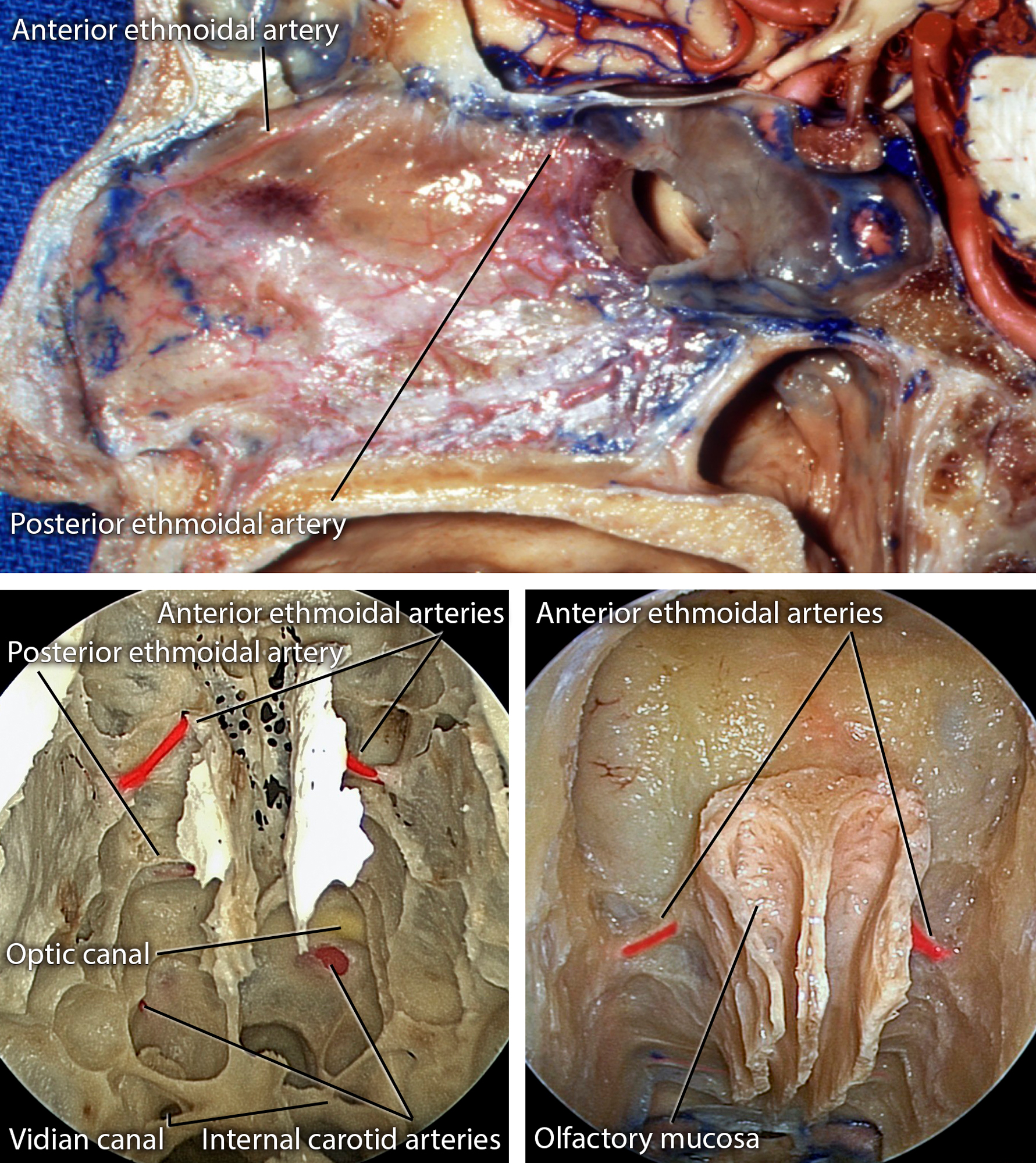Figure 4: The vascular anatomy to OGMs observed via the endoscopic transnasal approach is shown. Note the location of the anterior and posterior ethmoidal arteries (images courtesy of AL Rhoton, Jr). The final bony exposure is demonstrated in the bottom row.