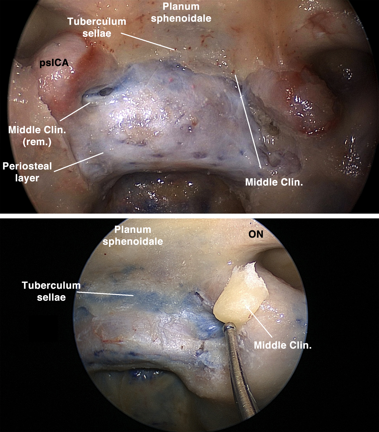 Figure 2: Top photograph: the middle clinoid process (Middle Clin.) was removed on the right side, but preserved on the left in order to demonstrate the gain in the exposure of the parasellar ICA (psICA) by removal of the process. Bottom image: this is an enhanced view after resection of the left middle clinoid process. ON: Optic Nerve (image courtesy of Juan Fernandez-Miranda).
