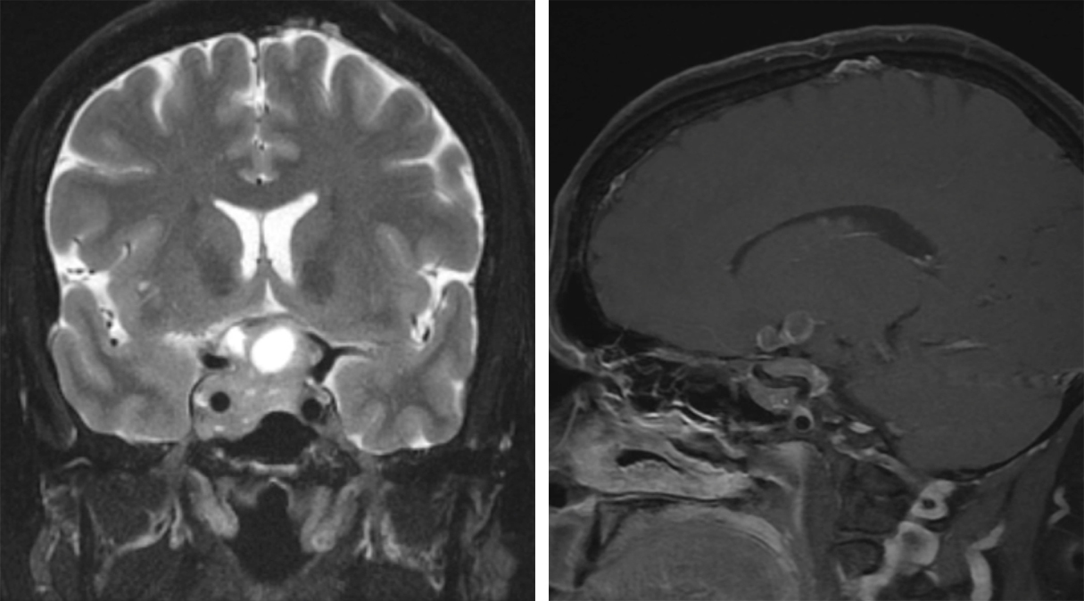 Figure 11: These images demonstrate an asymmetric pituitary adenoma with invasion of the right cavernous sinus (Knosp-Steiner Grade 4). Note that the ICA is completely encased by the tumor. The obliteration of the inferolateral venous compartment is also evident.