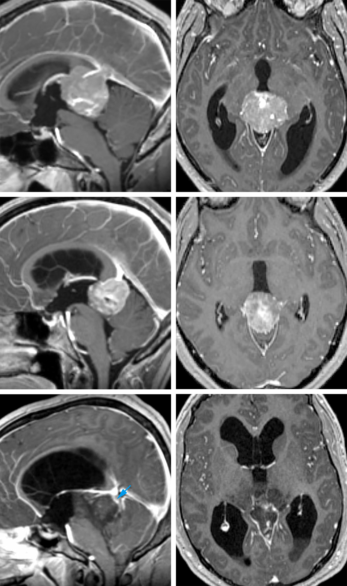 Figure 3: Different tumor subtypes in the pineal region are demonstrated. The top images show a germinoma in a young boy; the middle images belong to an adult patient with a pineoblastoma; and the bottom images show a hemorrhagic pilocytic astrocytoma. Note that in the images of the bottom row, the deep diencephalic veins are paradoxically displaced posteriorly (blue arrow). This important preoperative finding will affect the choice of operative approach and intraoperative dissection methodology. If the operator does not recognize this unusual location of the veins, the risk of injury to the veins during exposure and dissection is significant. The imaging similarities between the tumors in the top two rows prevent any reliable preoperative diagnosis without adjuvant diagnostic tools.