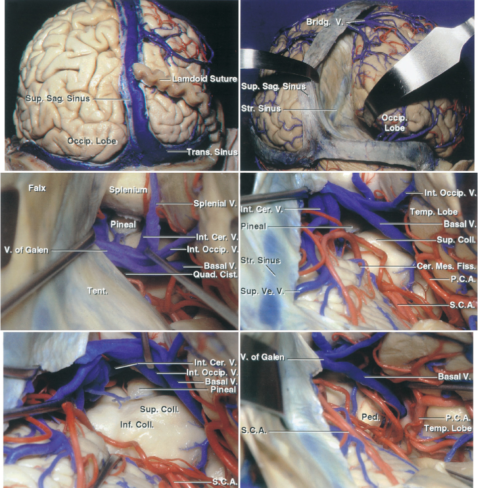 Figure 8: The steps for the occipital transtentorial approach are shown. Note the panoramic view of the pineal region and the superior-to-inferior operative trajectory (images courtesy of AL Rhoton, Jr).